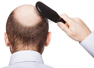 hair-transplantation10-e5